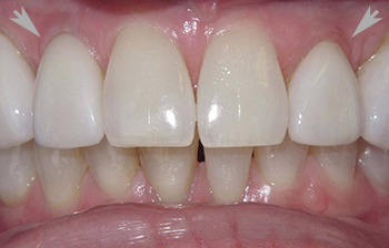A close up of teeth with a porcelain crowns