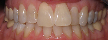 A close up of teeth before short-term orthodontics