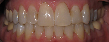 A close up of teeth after short-term orthodontics