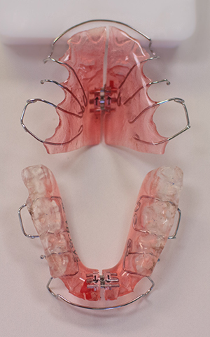Functional appliances used in orthodontics