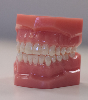 A model of the mouth wearing clear aligners