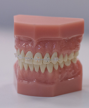 A model of the mouth with accelerated braces